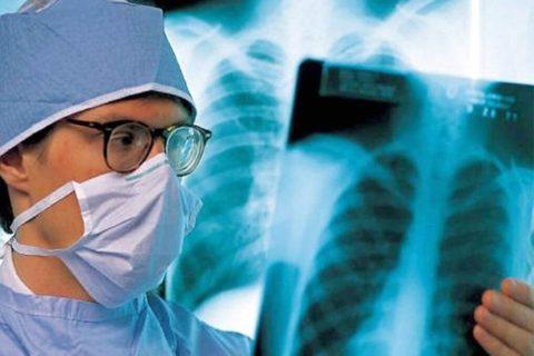 По статистике 20% заболевших легионеллезом умирают